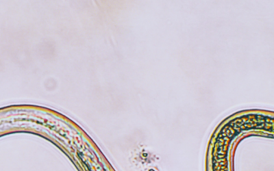 How to Identify Parasites: Our Process & Treatment
